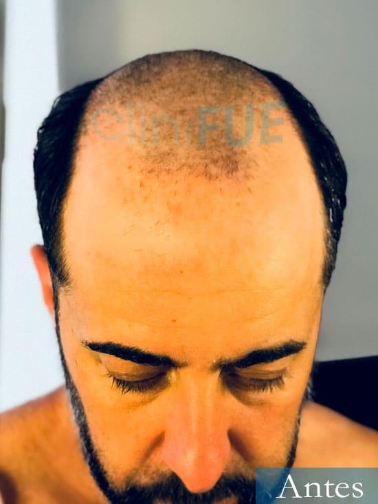 Jose-Manuel-36-Cadiz-trasplante-turquia-antes 2