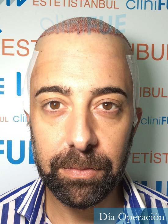 Jose-Manuel-36-Cadiz-trasplante-turquia-dia-operacion