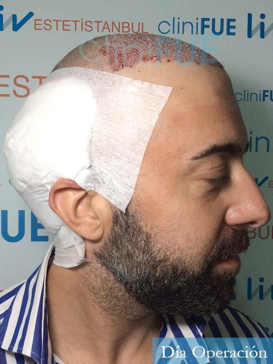 Jose-Manuel-36-Cadiz-trasplante-turquia-dia-operacion-3