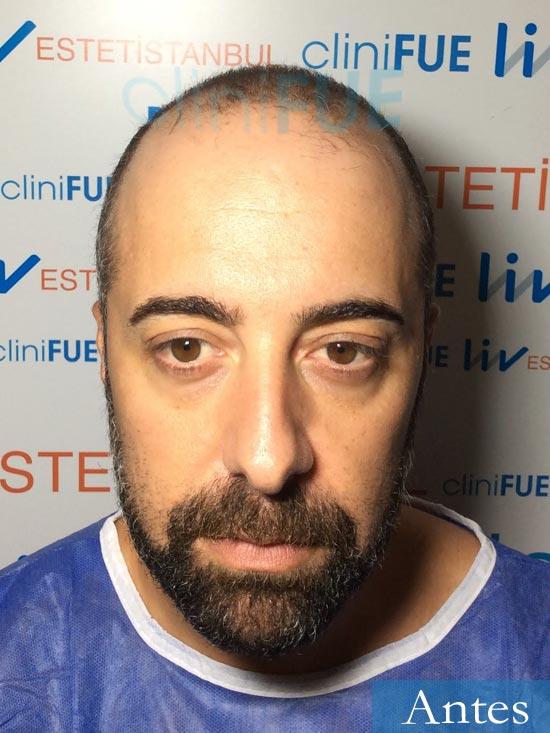 Jose Manuel 34 anos Cadiz injerto pelo turquia dia operacion antes