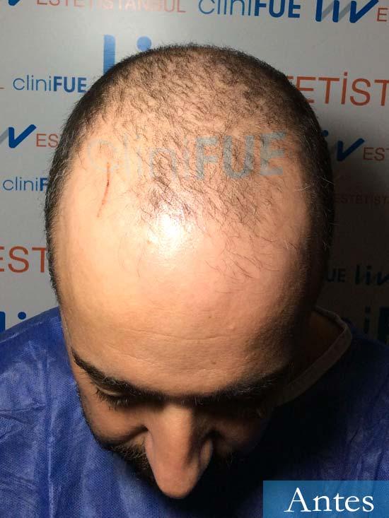 Jose Manuel 34 anos Cadiz injerto pelo turquia dia operacion antes 2