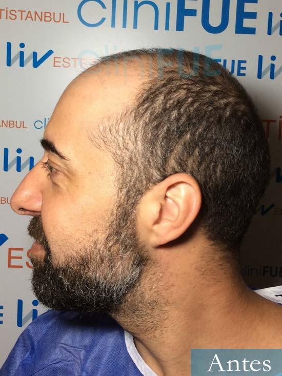 Jose Manuel 34 anos Cadiz injerto pelo turquia dia operacion antes 4