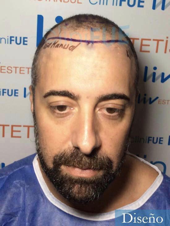 Jose-Manuel-36-Cadiz-trasplante-turquia-dia-operacion-diseno-1