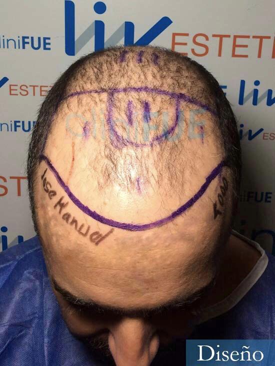 Jose-Manuel-36-Cadiz-trasplante-turquia-dia-operacion-diseno-2