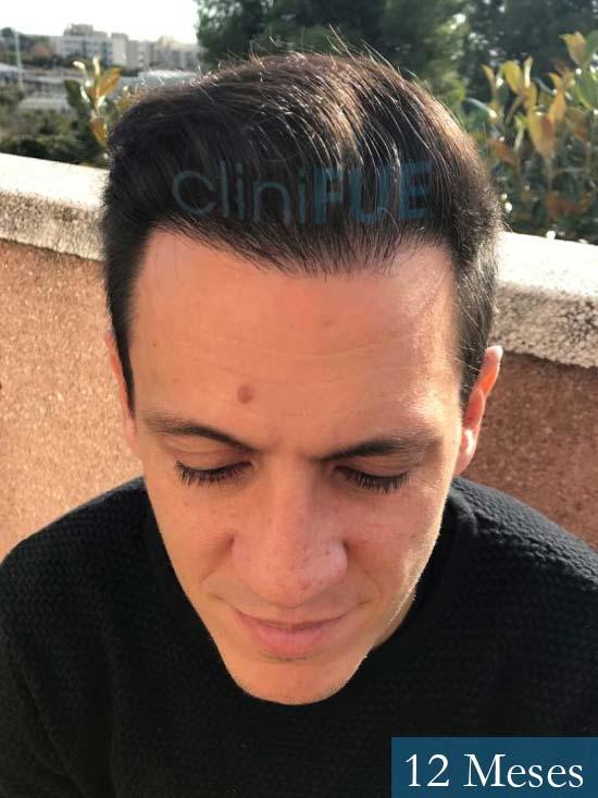 Josue-35-Tarragona-trasplante-turquia-12-meses-