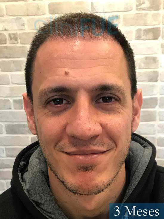 Joseu 35 Tarragona injerto de pelo dia operacion 3 meses