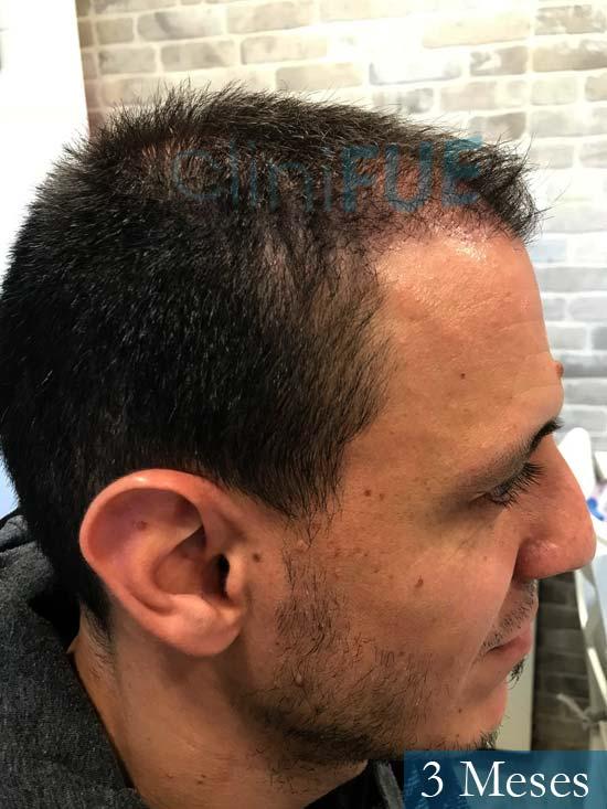 Joseu 35 Tarragona injerto de pelo dia operacion 3 meses 4