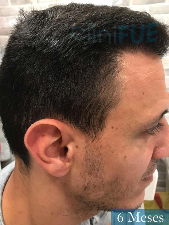 Joseu 35 Tarragona injerto de pelo dia operacion 6 meses 3