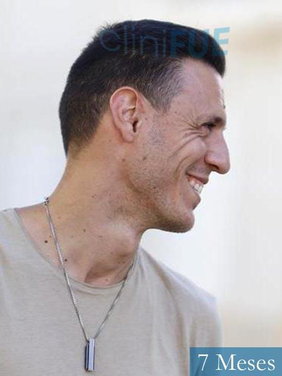 Joseu 35 Tarragona injerto de pelo dia operacion 7 meses 4