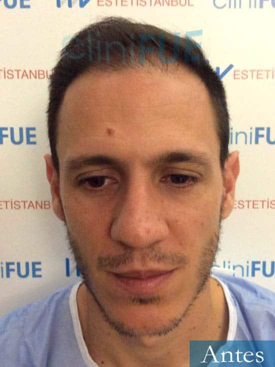 Joseu 35 Tarragona injerto de pelo dia operacion Antes