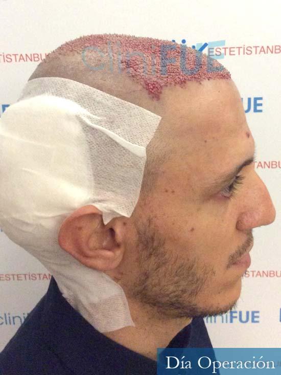Joseu 35 Tarragona injerto de pelo dia operacion dia operacion 3