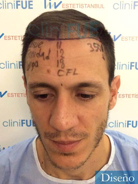 Joseu 35 Tarragona injerto de pelo dia operacion diseno