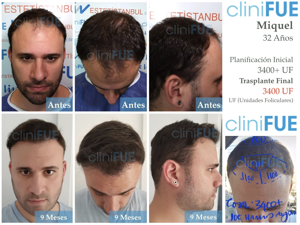Miquel-32-Barcelona-trasplante-capilar-turquia