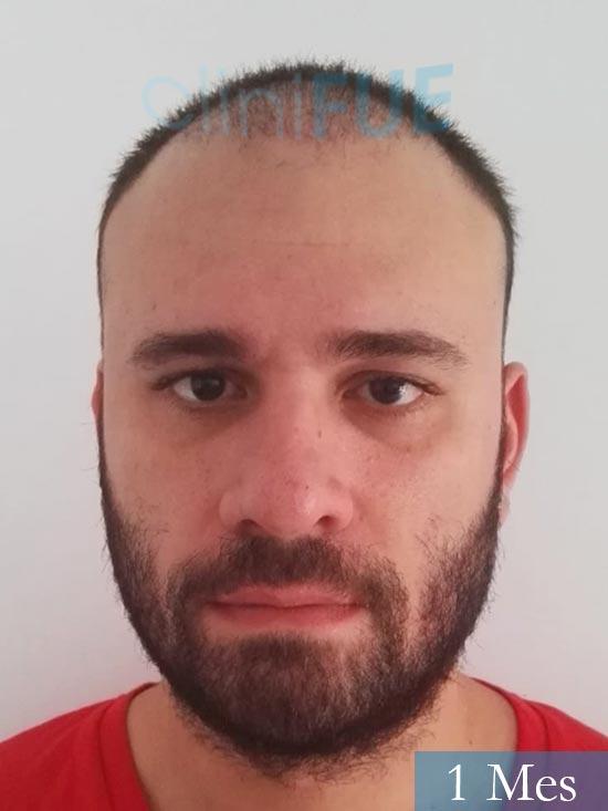 Miquel 32 años de barcelona injerto capilar turquia 1 mes