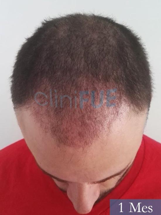 Miquel 32 años de barcelona injerto capilar turquia 1 mes 2