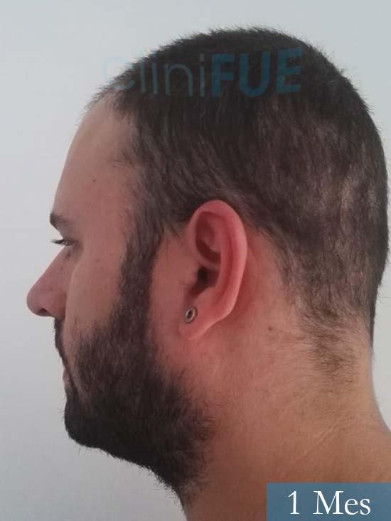 Miquel 32 años de barcelona injerto capilar turquia 1 mes 4
