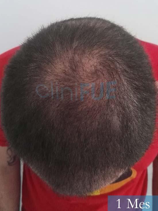 Miquel 32 años de barcelona injerto capilar turquia 1 mes 6