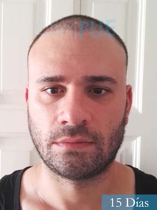 Miquel 32 años de barcelona injerto capilar turquia 15 dias