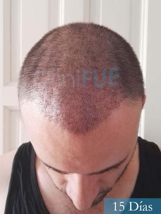 Miquel 32 años de barcelona injerto capilar turquia 15 dias 2