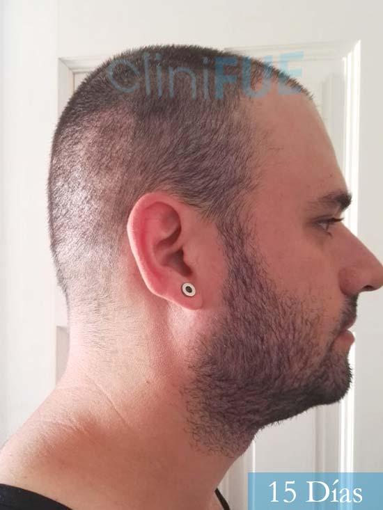 Miquel 32 años de barcelona injerto capilar turquia 15 dias 3