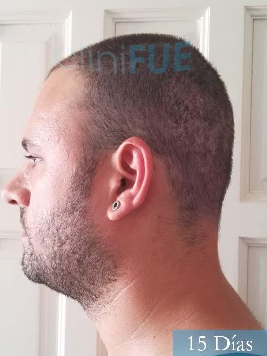 Miquel 32 años de barcelona injerto capilar turquia 15 dias 4