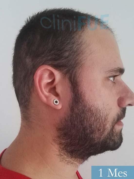 Miquel 32 años de barcelona injerto capilar turquia 1 mes 3
