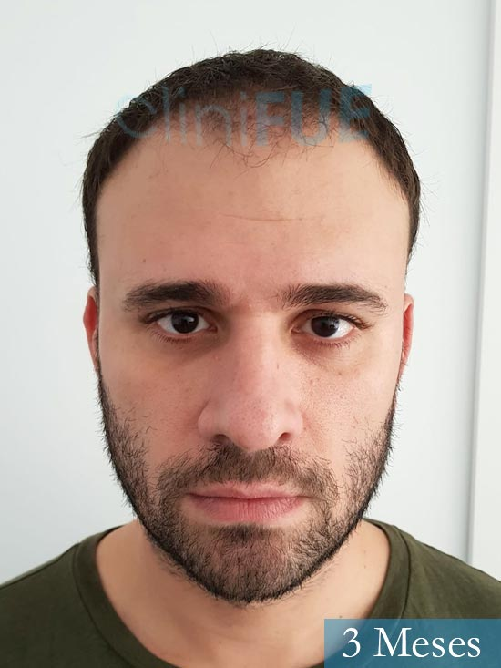 Miquel 32 años de barcelona injerto capilar turquia 3 meses