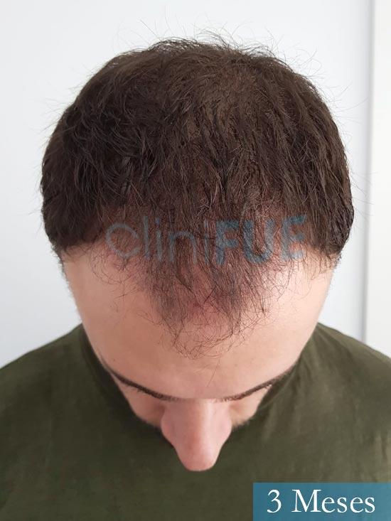 Miquel 32 años de barcelona injerto capilar turquia 3 meses 2