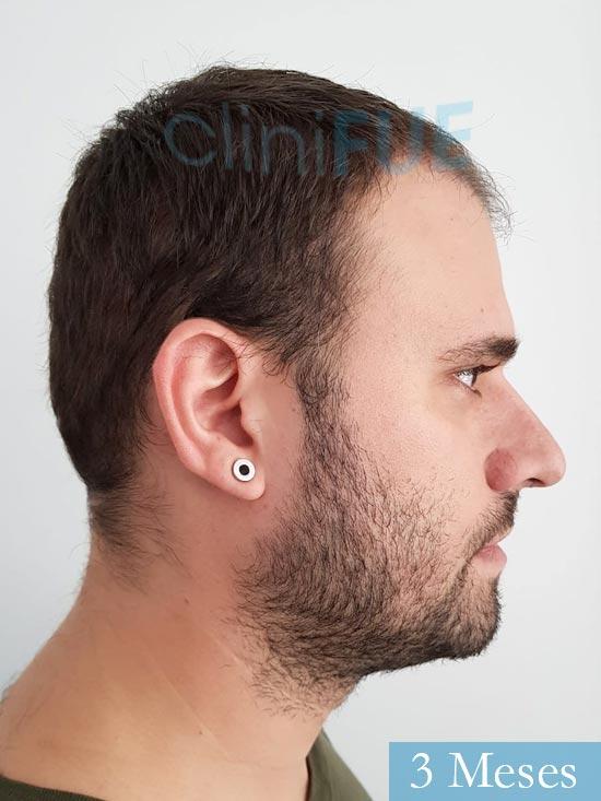 Miquel 32 años de barcelona injerto capilar turquia 3 meses 3