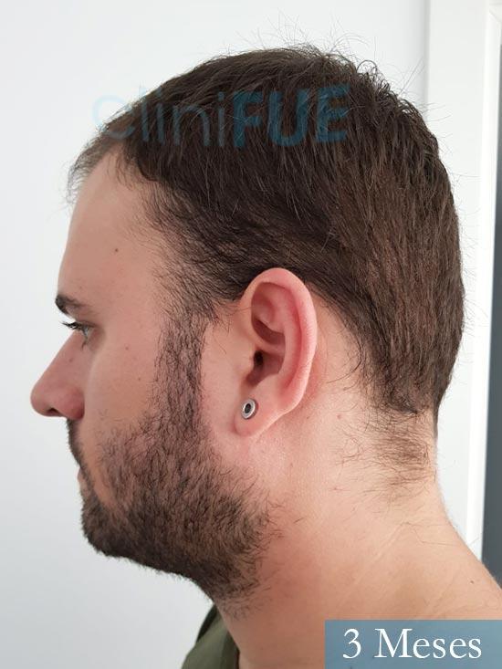Miquel 32 años de barcelona injerto capilar turquia 3 meses 4