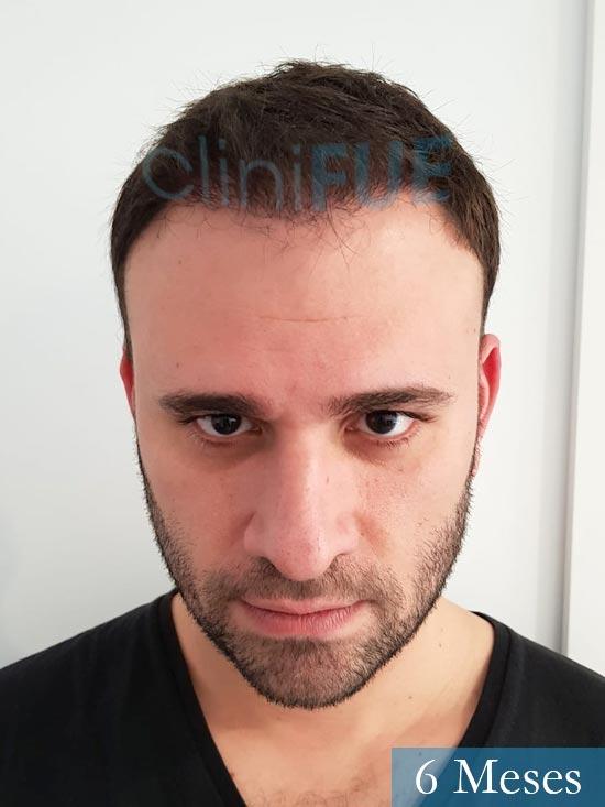 Miquel 32 años de barcelona injerto capilar turquia 6 meses