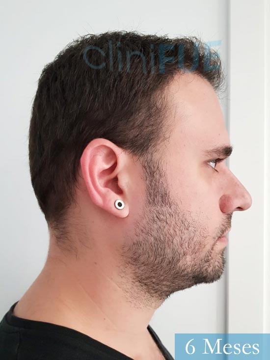 Miquel 32 años de barcelona injerto capilar turquia 6 meses 3