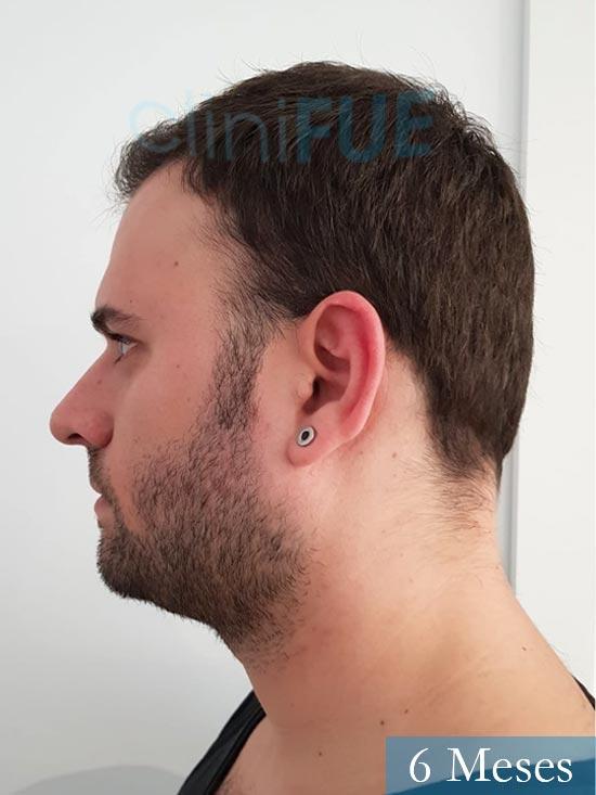 Miquel 32 años de barcelona injerto capilar turquia 6 meses 4