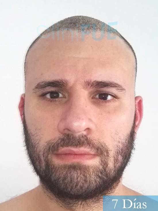 Miquel 32 años de barcelona injerto capilar turquia 7 dias