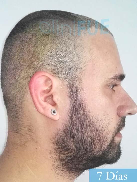 Miquel 32 años de barcelona injerto capilar turquia 7 dias 3