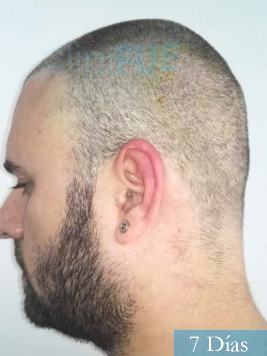 Miquel 32 años de barcelona injerto capilar turquia 7 dias 4