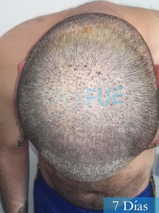 Miquel 32 años de barcelona injerto capilar turquia 7 dias 6