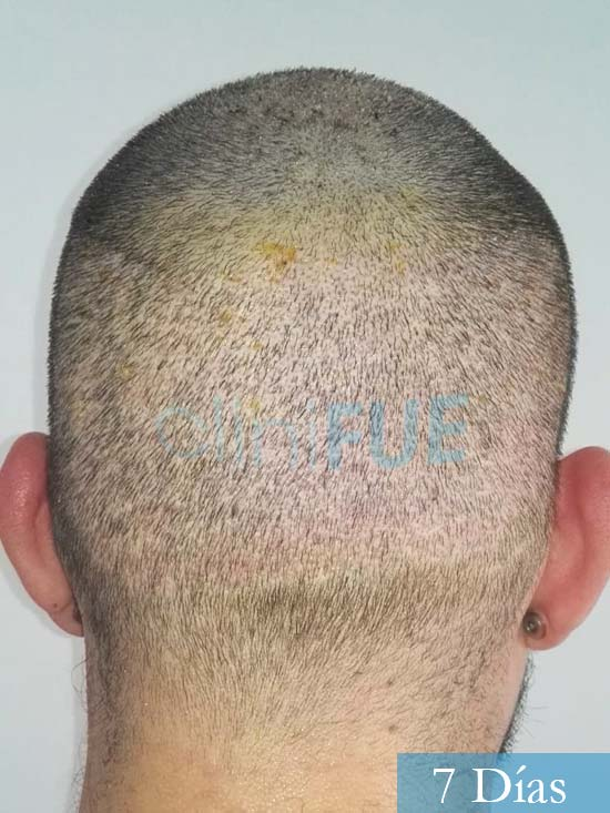 Miquel 32 años de barcelona injerto capilar turquia 7 dias 5
