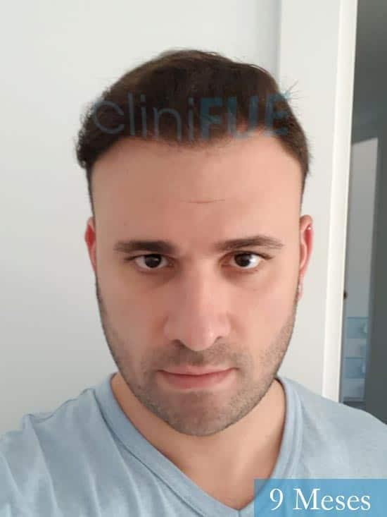 Miquel 32 años de barcelona injerto capilar turquia 9 meses