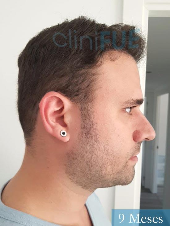 Miquel 32 años de barcelona injerto capilar turquia 9 meses 3