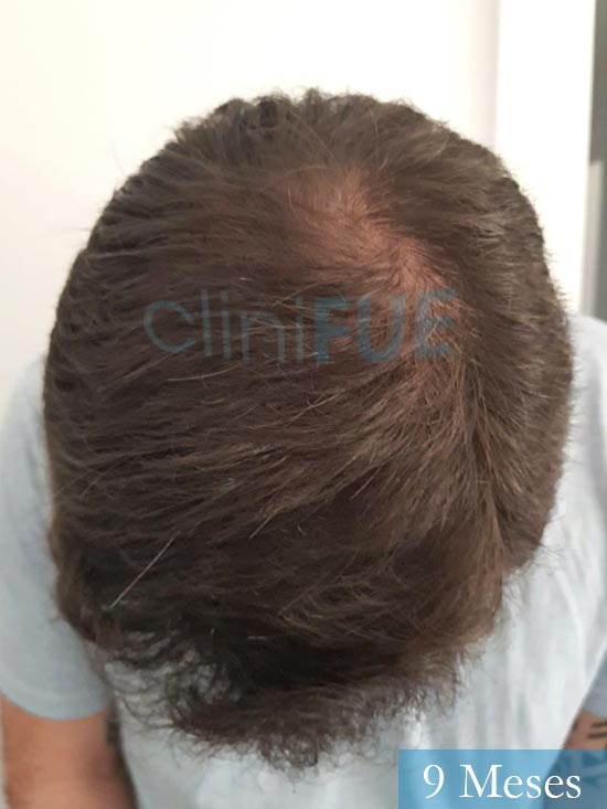 Miquel 32 años de barcelona injerto capilar turquia 9 meses 6