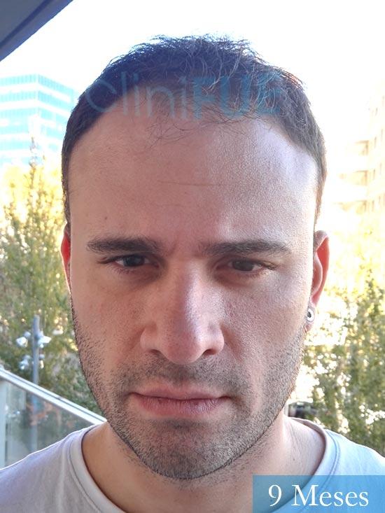 Miquel 32 años de barcelona injerto capilar turquia Antes