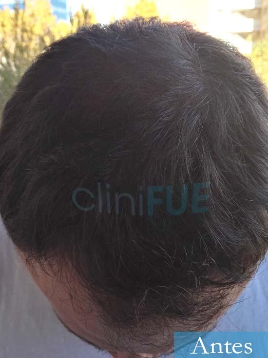 Miquel 32 años de barcelona injerto capilar turquia Antes 6