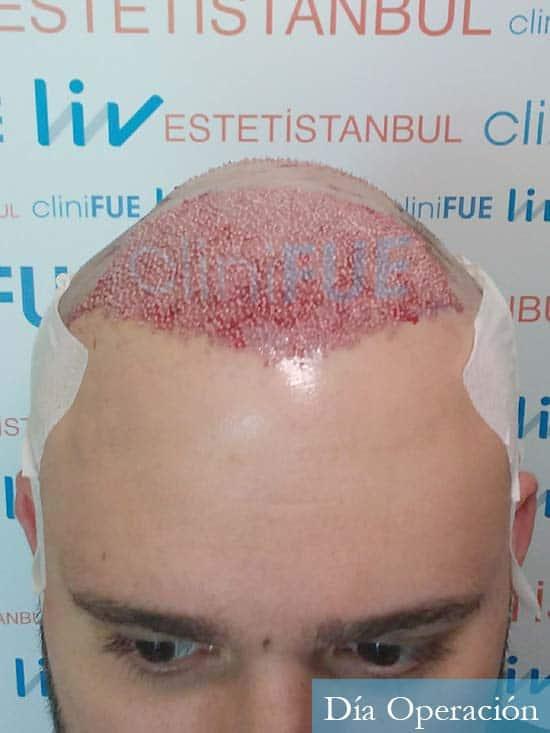 Miquel 32 años de barcelona injerto capilar turquia dia operacion