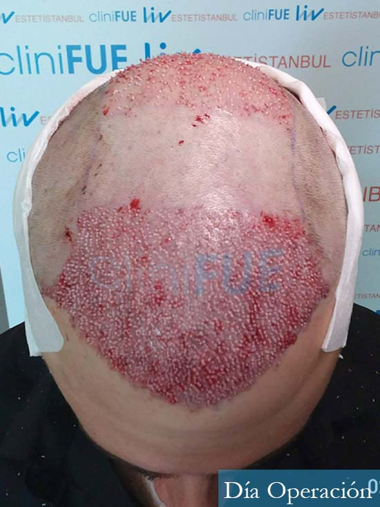 Miquel 32 años de barcelona injerto capilar turquia dia operacion 2