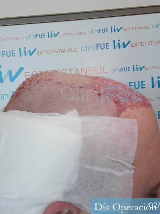Miquel 32 años de barcelona injerto capilar turquia dia operacion 3