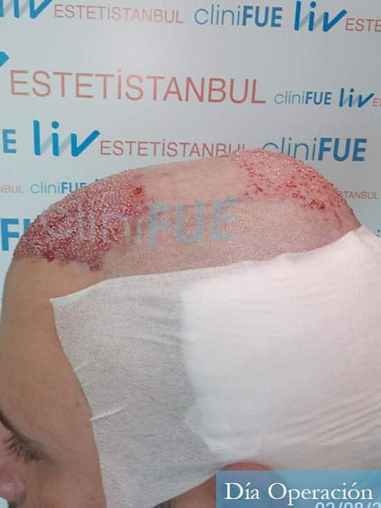 Miquel 32 años de barcelona injerto capilar turquia dia operacion 4