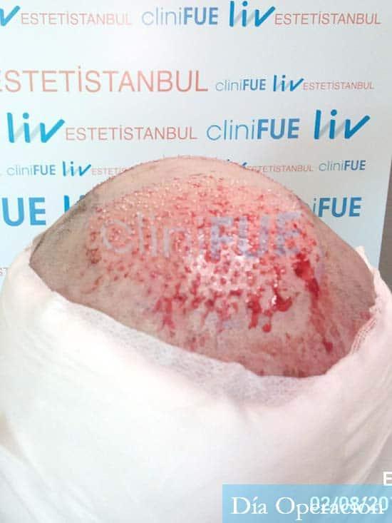 Miquel 32 años de barcelona injerto capilar turquia dia operacion 5