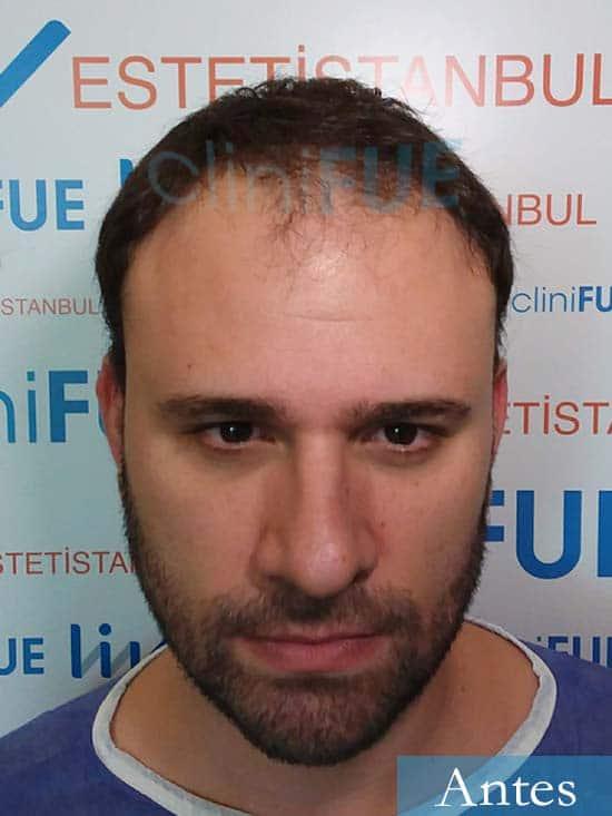 Miquel 32 años de barcelona injerto capilar turquia dia operacion antes