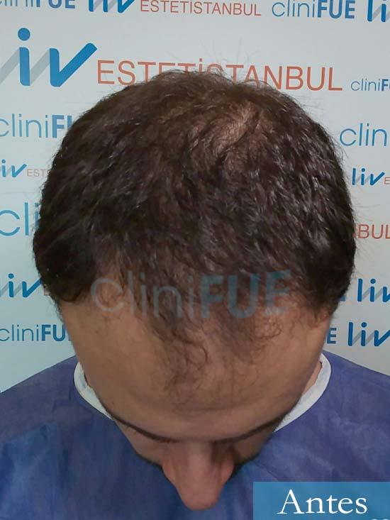 Miquel 32 años de barcelona injerto capilar turquia dia operacion antes 2
